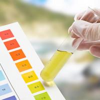 Rheumatoid Factor Latex 100 Tests